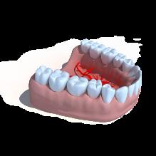 牙齿-人物_角色-医学解剖-CG模型-3D城