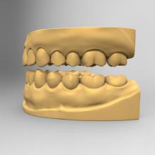 标准医学牙齿模型